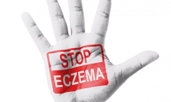 Kinetico  Utah - stop eczema - purchased from canstockphoto 10.2014